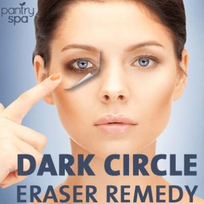 Potato Under Eye Bag Home Remedy