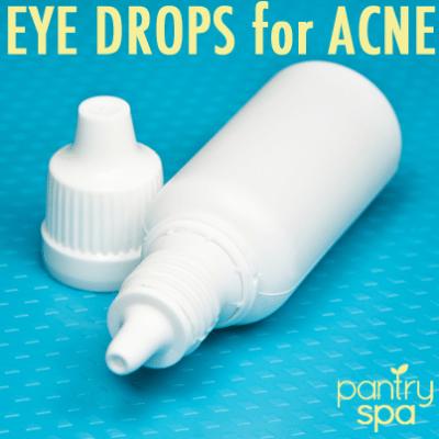 Visine Eye Drop Acne Remedy