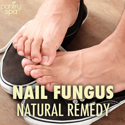 Dr Oz: Nail Fungus Vinegar Water Solution Natural Remedy - Pantry Spa