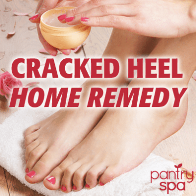 Dry Cracked Heel Home Remedy