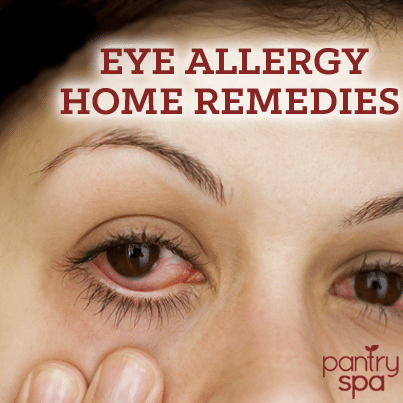Natural Remedy For Itchy Allergie Eyes