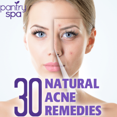 30 Acne Remedies Tested for Pimples, Blackheads & Rosacea