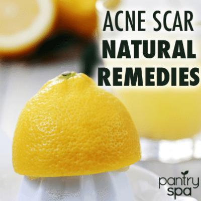 baking soda acne scars