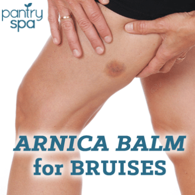 Arnica Balm Recipe: Bruise, Sprain & Cuts Remedy for Pain Relief