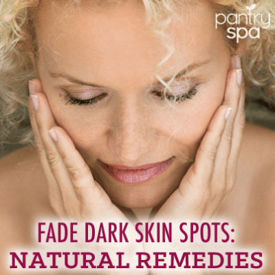 home Remedies to Fade Dark Spots: Apple Cider Vinegar & Tea Tree Oil