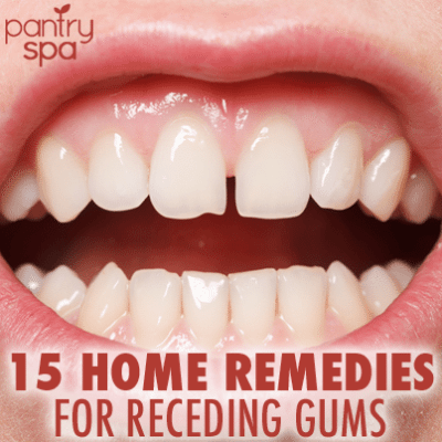 15 Home Remedies for Receding Gums (Natural DIY At Home Tips!)